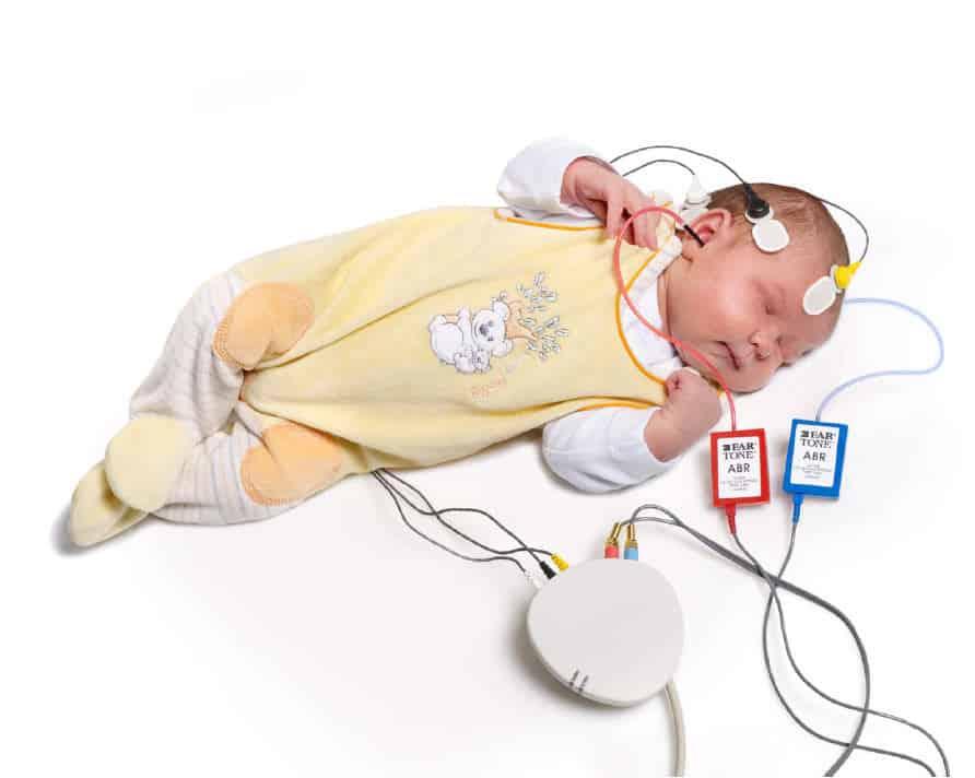 تست شنوایی سنحی نوزادان با abr