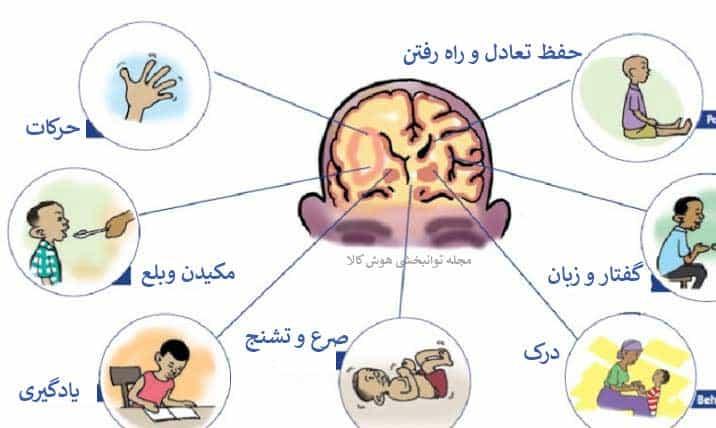 عوارض فلج مغزی و یا سی پی