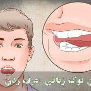 درمان نوک زبانی حرف زدن بزرگسالان و کودکان