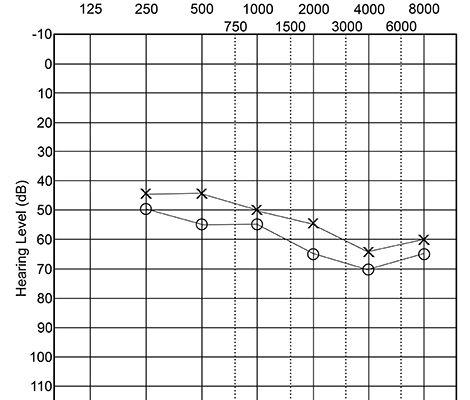 ادیوگرام کم شنوایی متوسط