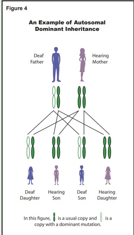 اتوموزال غالب در کم شنوایی