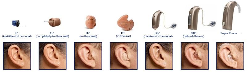 درمان کم شنوایی ارثی سمعک