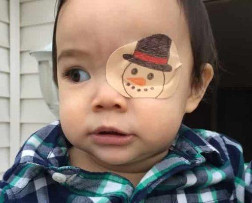 ععل و علت نابینایی مادرزادی