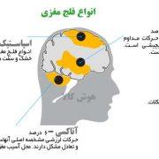 انواع فلج مغزی cp اینفوگرافی