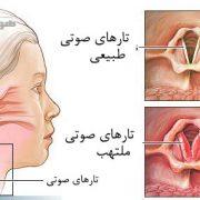 لارنژیت و التهاب تارهای صوتی