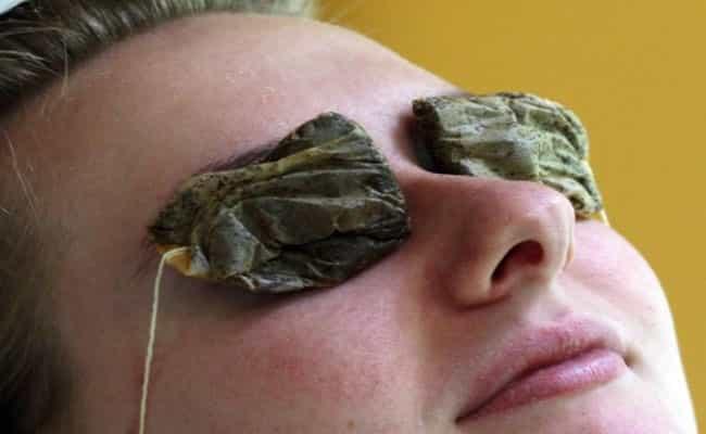 10 درمان فوری خانگی برق زدگی چشم