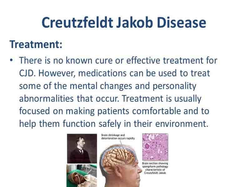 بیماری کروتز فلدت-جاکوب