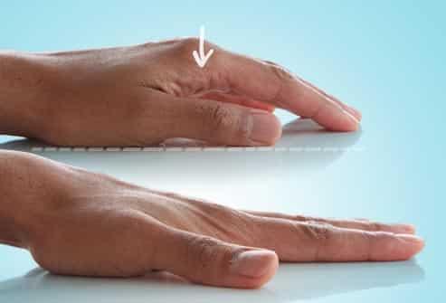 تمرین مناسب دست سکته مغزی